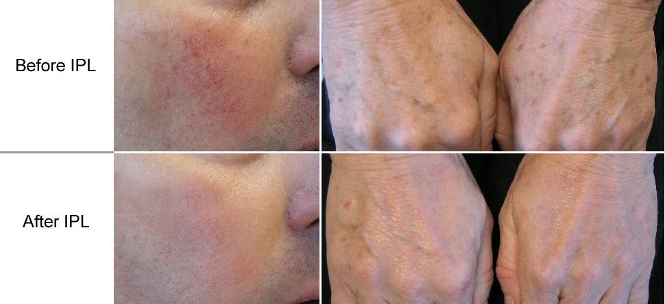 Laser Hair Removal In Amarillo Tx Awaken Med Spa