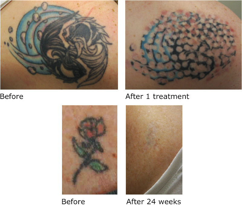 Tattoo Removal Awaken Med Spa
